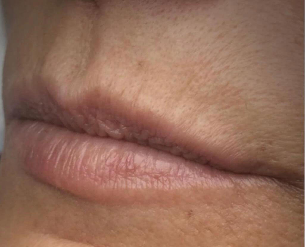 Wink dermopigmentação Antes